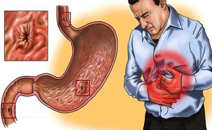диета при повышенной кислотности желудка меню